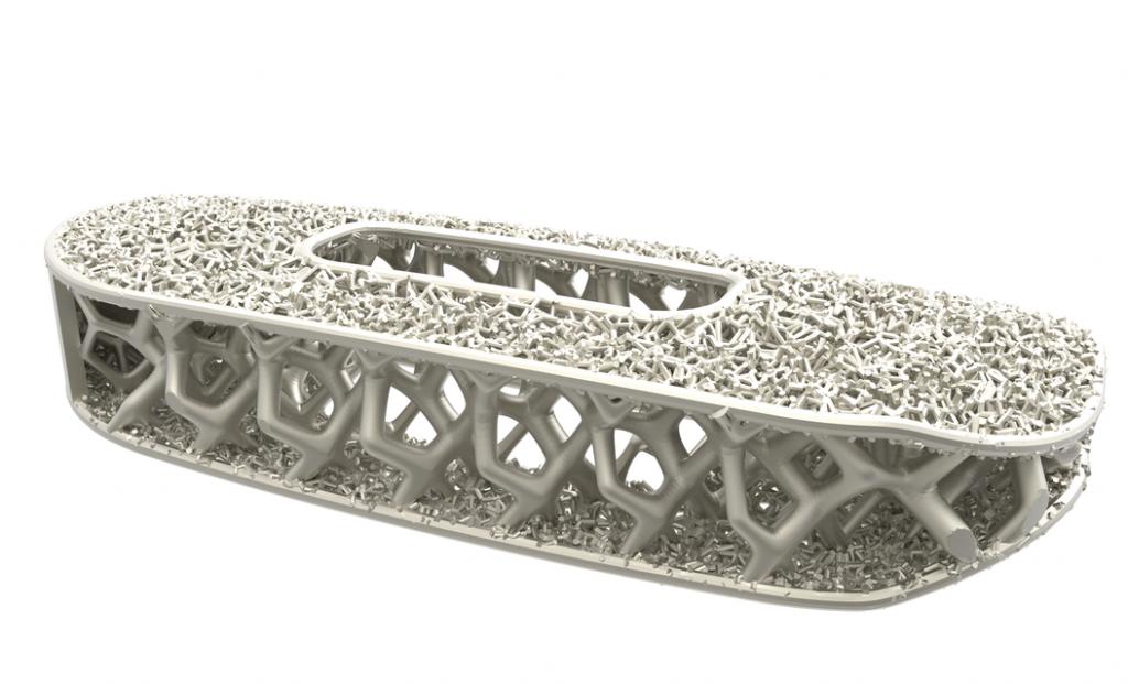 NuVasive titanium implant generative design