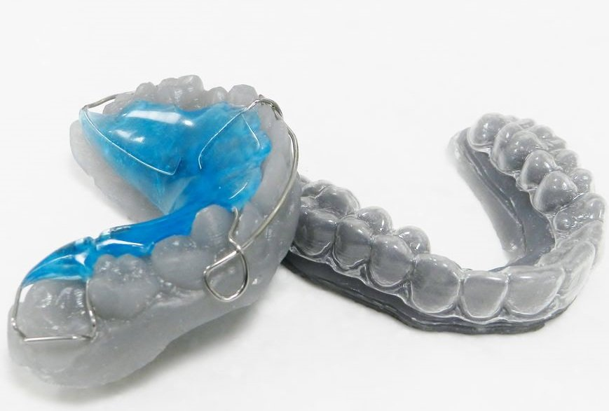 3D printed orthodontics Formlabs