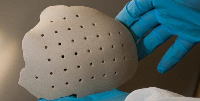 Ein OXPEKK SLS 3D gedrucktes Schädelimplantat [Bildnachweis: Oxford Performance Materials]